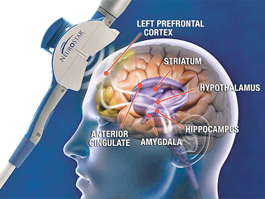 TMS: A novel treatment in neuro-psychiatry